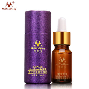 MeiYanQiong   Essential Oil Lavender Essence Skin Care Natural Pure Remove Ance Burn Strentch Marks Scar Removal