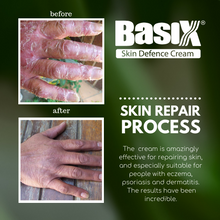Load image into Gallery viewer, Basix Skin Defence Cream for Dry Flaky Itchy Skin Soothes Eczema Psoriasis Dermatitis - 11 Natural Active Healing Ingredients - Anti-Inflammatory, Anti-Viral, Anti-Itch - With Kigelia Africana - Natural Plant Sterols