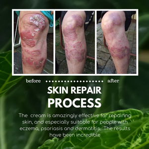 Basix Skin Defence Cream for Dry Flaky Itchy Skin Soothes Eczema Psoriasis Dermatitis - 11 Natural Active Healing Ingredients - Anti-Inflammatory, Anti-Viral, Anti-Itch - With Kigelia Africana - Natural Plant Sterols