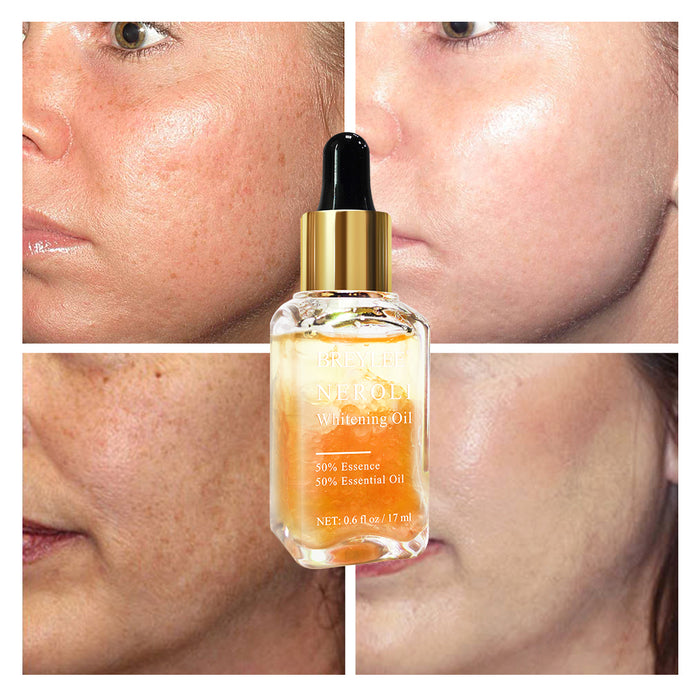 BREYLEE Neroli Whitening Essential Oils Fade Dark Spots Remove Face Freckle Brighten Skin Facial Serum Moisturizer Essence Oil
