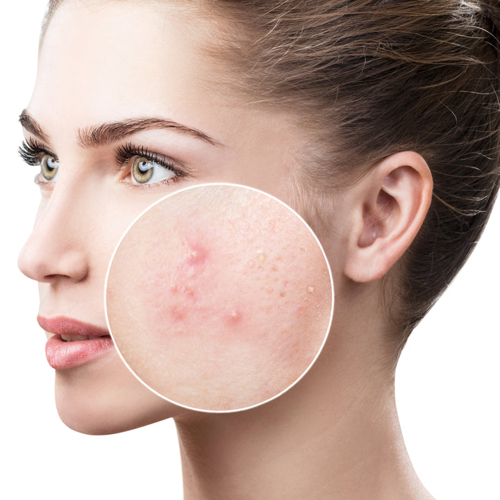 Does Sulfur Help Alleviate Acne?