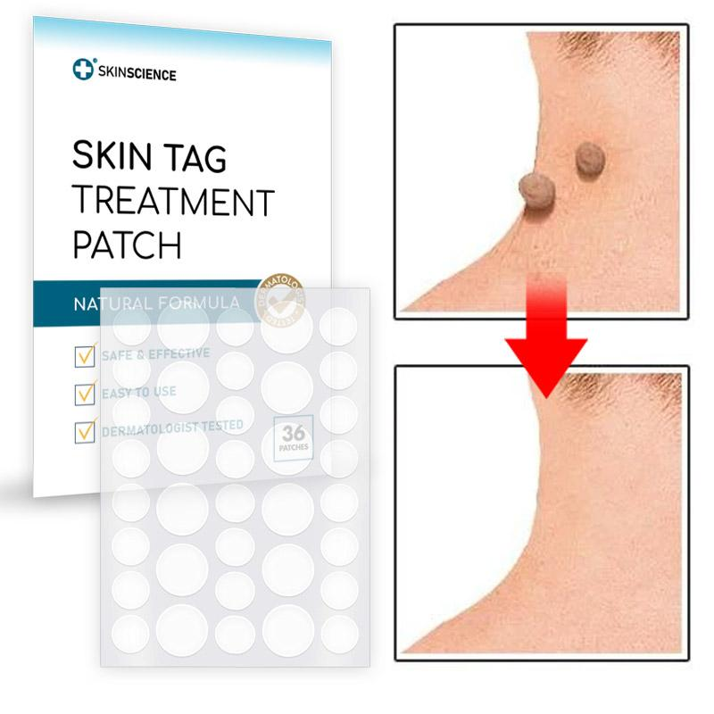 Skin Mole Removal Patch