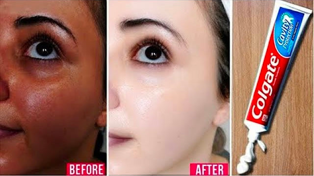 Apply Toothpaste on Your Skin and See Magical Result