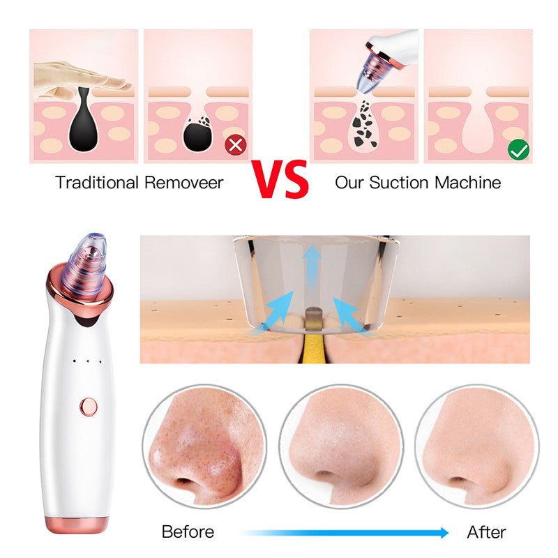Blackhead Remover Vacuum Suction Face Pimple Acne Comedone Extractor - AmineMarket-Online shopping for the latest Products