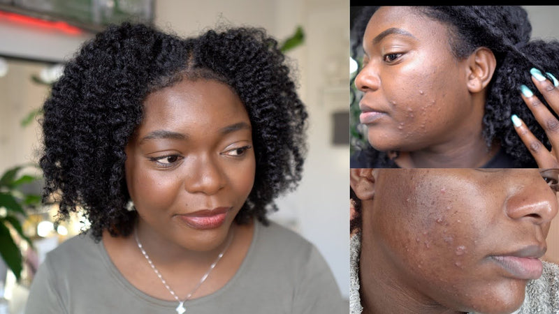 3 Unbelievable Ingredients That Helped Cure My Acne- AQ Online
