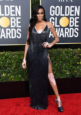Model Winnie Harlow on the red carpet at the Golden Globes, wearing a black flapper style dress with silver fringing