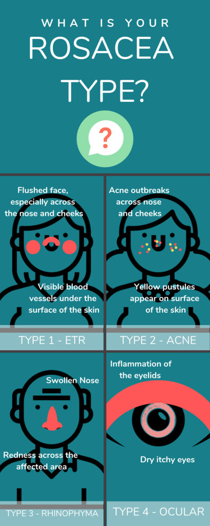 What Is Your Rosacea Type?