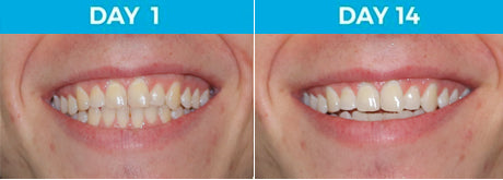 4 Shades Whiter - 18-Year Old Male Non-Smoker Using White Birch™ Charcoal Toothpaste