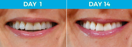 6 Shades Whiter - 42-Year Old Female Non-Smoker Using White Birch™ Charcoal Toothpaste