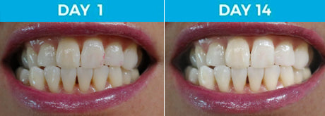 6 Shades Whiter - 37-Year Old Female Non-Smoker Using White Birch™ Charcoal Toothpaste
