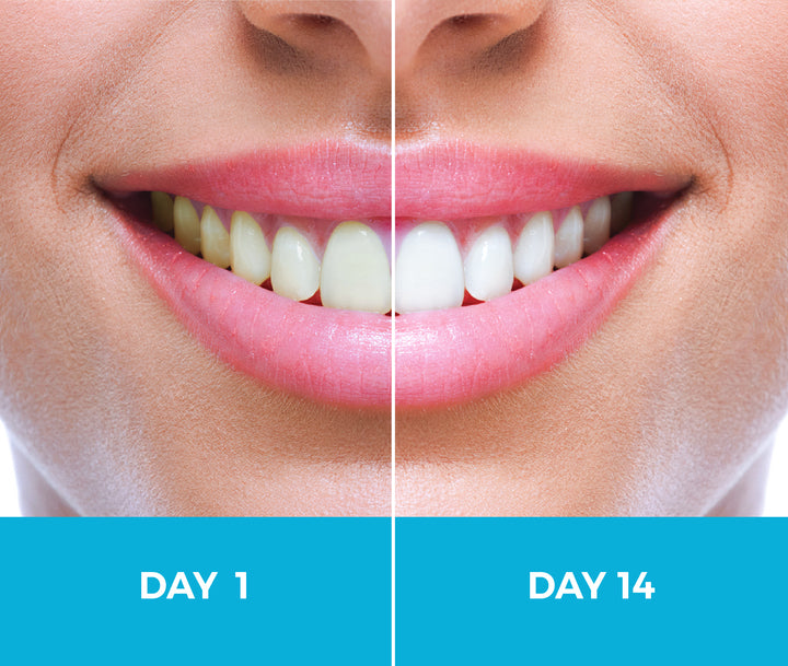 White Birch Whitening Toothpaste - See Real Results