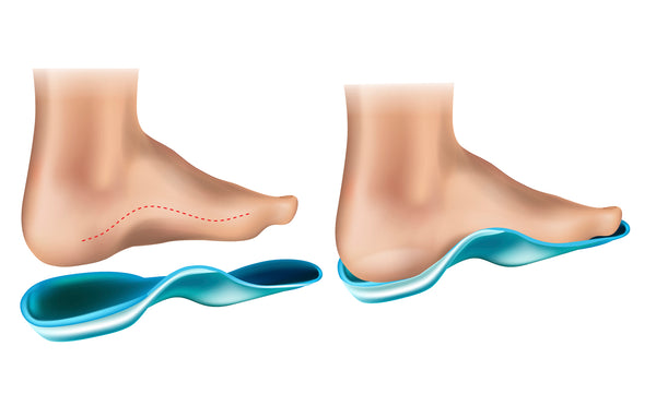 Arch Support in Shoes - Good or Bad
