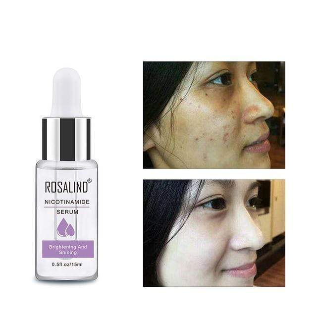 Chicandvip.com Niacinamide Anti-Aging Wrinkle Deep Repair Skin Face Serum
