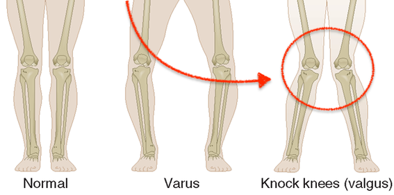 Poor Knee Biomechanics - ACL Injury