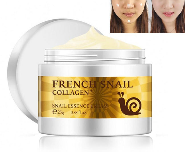 Snail Acne Scar Removal Cream For Face