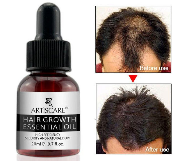 Hair Growth Essential Oil Repair Treatment Dense For Women And Men