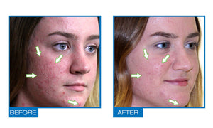 Acdue Acne Scar And Dark Spot Removal (1.0 fl.