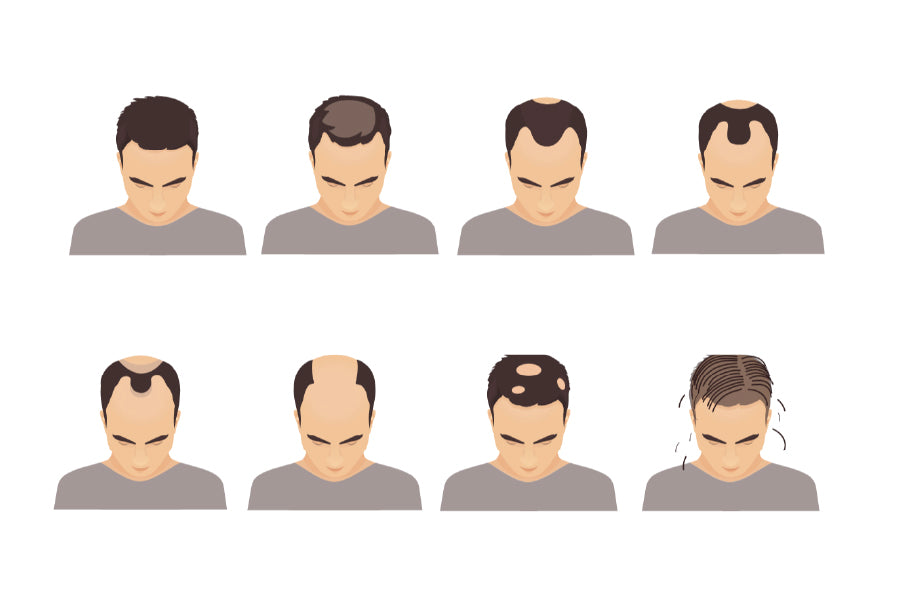 How To Avoid A Receding Hairline For Men: 7 Hair Loss Prevention Tips