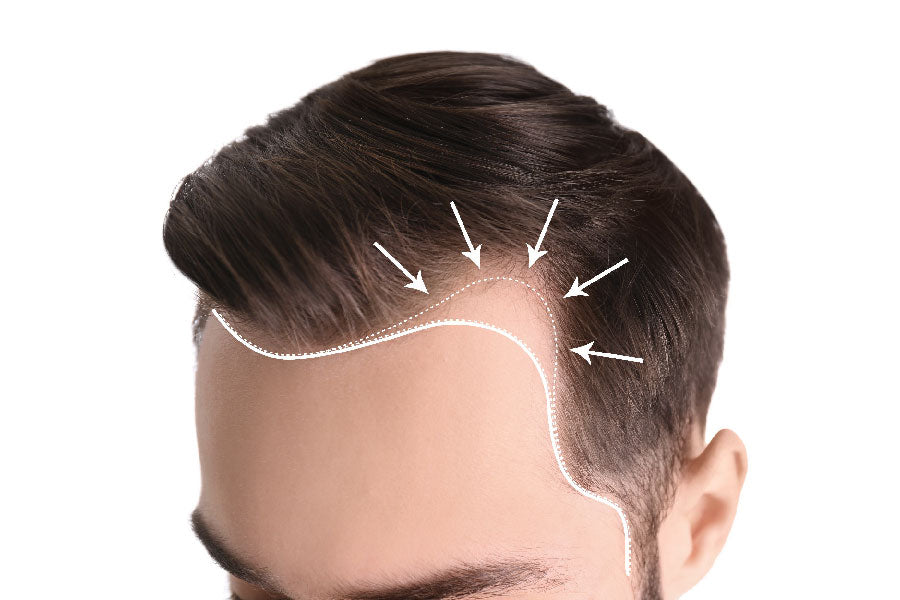 Natural cure for receding hairline