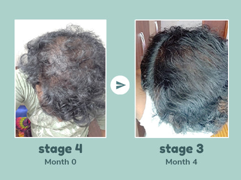 Stage 4 male pattern hair loss