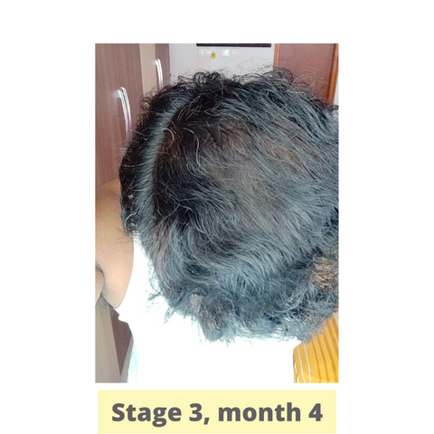 Success story of Tatva customer who was regular with the hair loss care treatment. His scalp folliculitis started improving for hair growth.