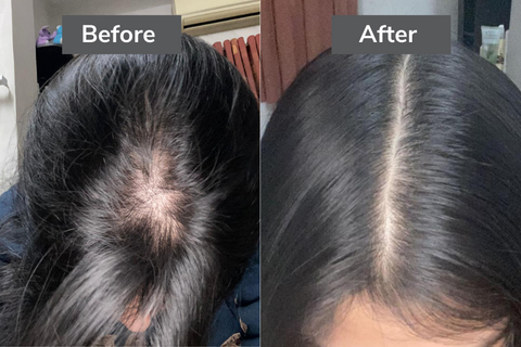 Before After for Traya's Hair loss treatment.