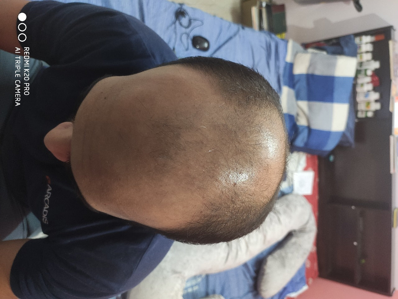 Stage 5 male pattern hair loss