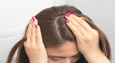 The Basics Of Dandruff