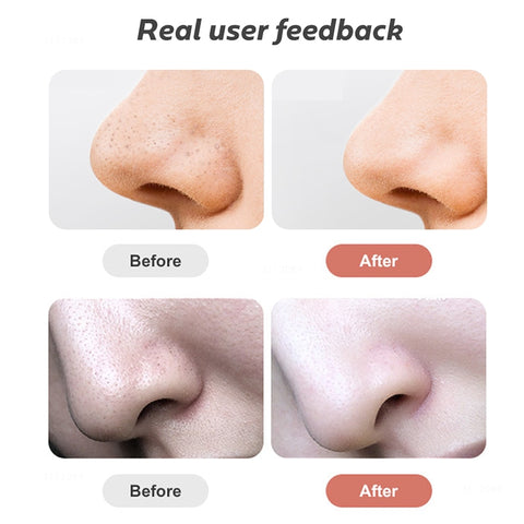 Visual Blackhead Removal Vacuum with Built-in Camera