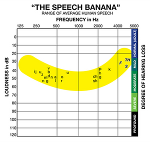 "The ""Speech Banana"" and the Sounds of Human Speech"