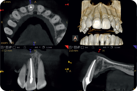 Analyse external and internal root resorption