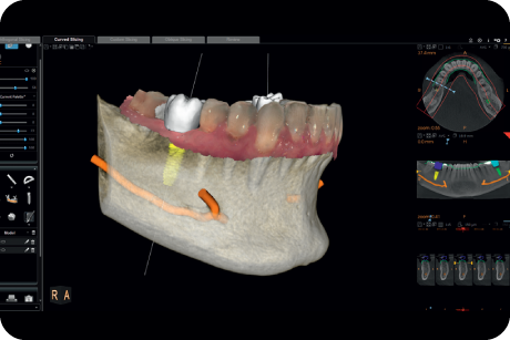 Plan implants using specialised 3D software