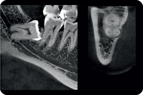 Identify relationships between impacted teeth and vital anatomical structures