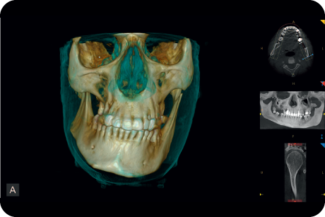 Analyse skeletal symmetry and plan orthodontic surgical treatment