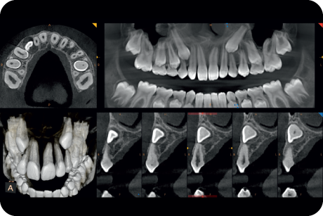Evaluate ectopic and impacted teeth