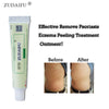 Image of Advanced Psoriasis & Eczema Cream