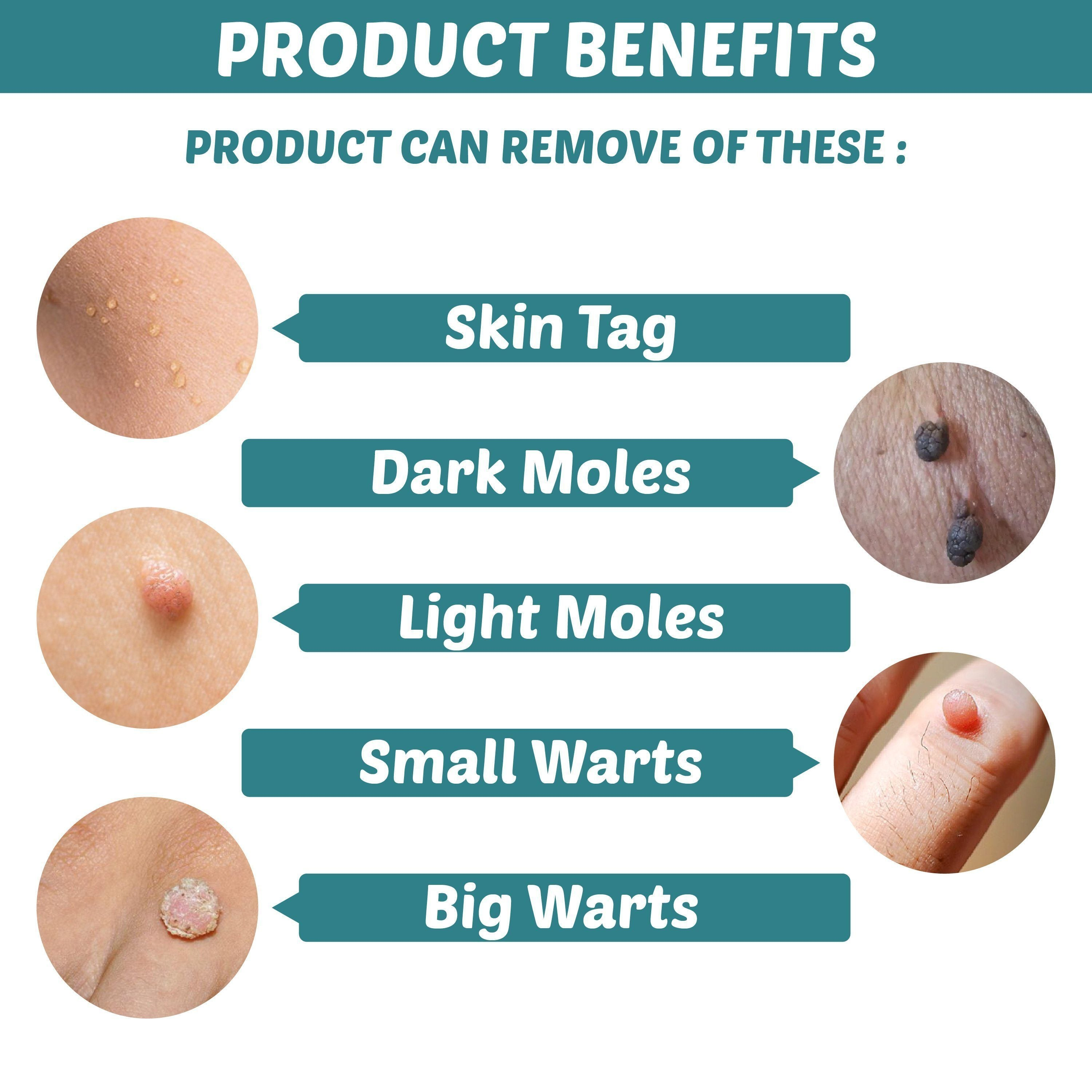 Skin Tag Remover Patch Garlicpetal