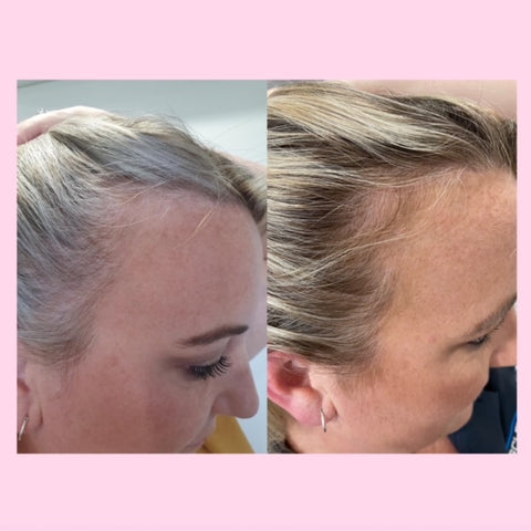 before and after images inner hair nutrition bites results