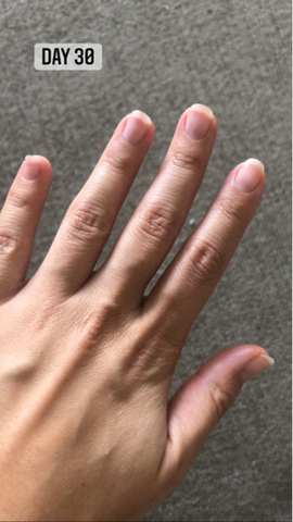 day 30 after taking inner hair nutrition bites nail growth results