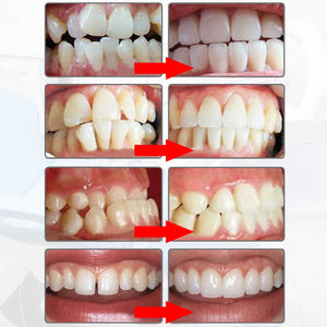 Adult Dental Teeth Whitener CLEANER Perfectly Straightens/Aligns Teeth *FDA Approved