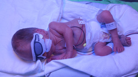 Premature Baby Phototherapy