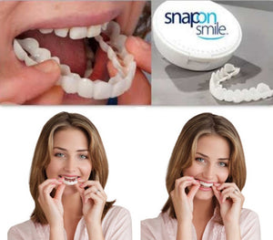 Hot Sales in USA! 【Snap On Smile Braces】No shots!No Driling! No Pain!