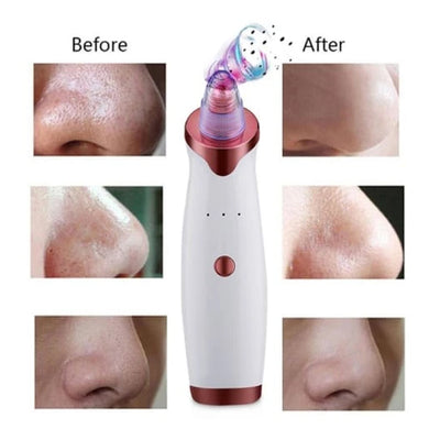 【LAST DAY PROMOTION, 50% OFF】TOP RATED BLACKHEAD REMOVER - worthbuyonline