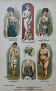 Abnorme und normale Koerperformen (Abnormal and normal body forms) Hilfsmittel fuer die Rueckenbildung zur Normalform (Aids for back for normal form)  Chromolithograph, 1911. Extra page of text in German.