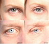 Image of ANTI-AGING EYELID TAPE