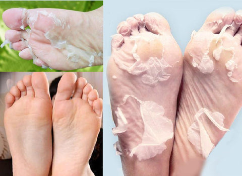 BABY FOOT ORIGINAL DEEP MOISTURIZING EXFOLIATION FOR FEET PEEL SOCKS (2 PAIRS) - Trendy Outdoor Deals Store
