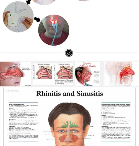 Laser Nose Rhinitis Sinusitis Cure Therapy Massage - trendyoutdoordealsstore.com