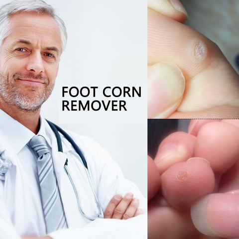 Foot Corn Remover Feet Care-12pcs
