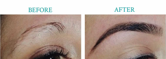 Librow - Before and After