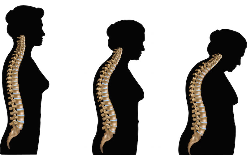 OSTEOPOROSIS IS NOT JUST A CALCIUM PROBLEM